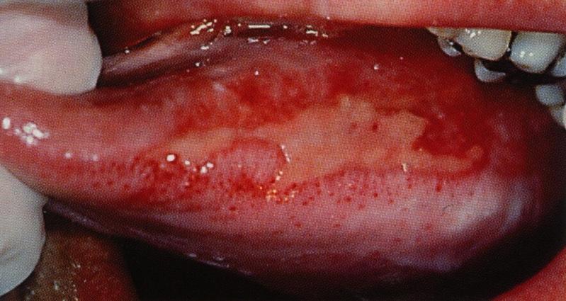 kreft i munnhulen