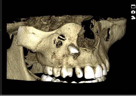 Tredimensjonalt bilde av ikke frembrudt tann