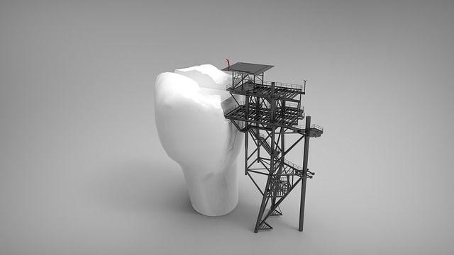 Reperasjon av tann