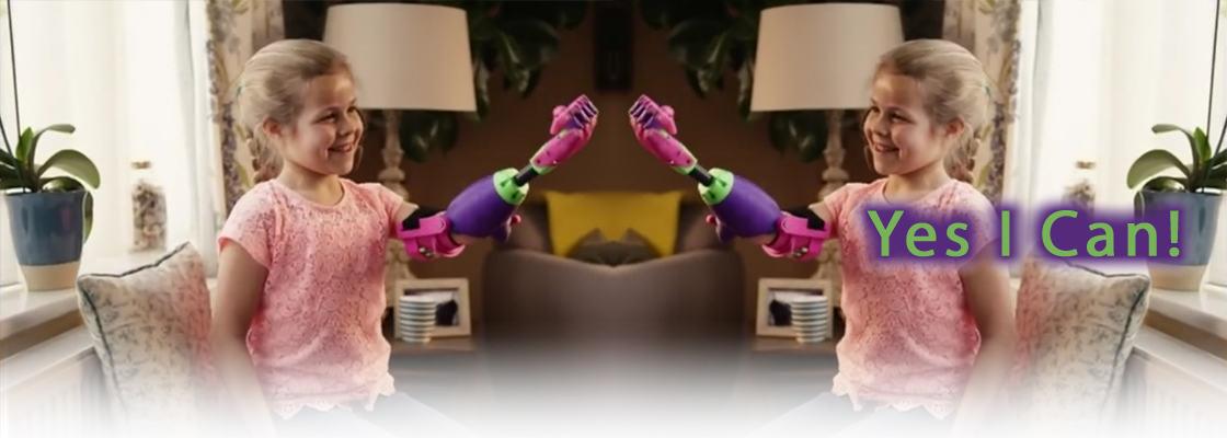 Jente med fargerik protese