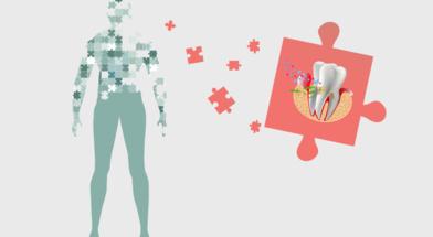 Sammenhengen mellom periodontal helse og allmennhelse